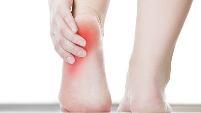 Heel Spurs: Symptoms, Causes, and