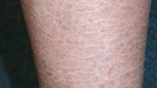 Image result for Ichthyosis vulgaris