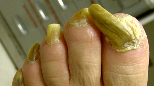 Onychogryphosis (Ram\'s Horn Nails): Causes & Treatment