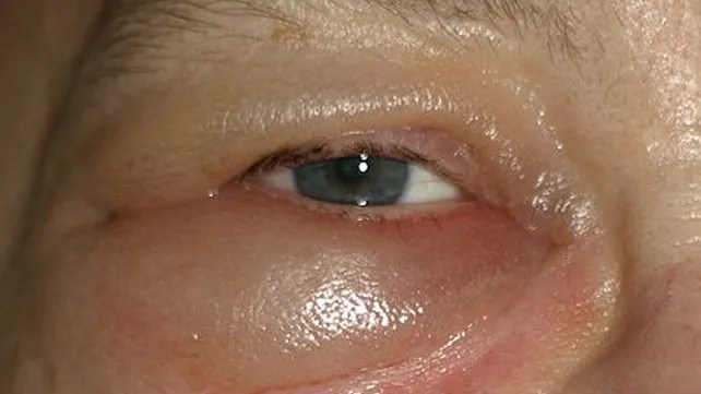 a látás átmenetileg lebeg szemészeti könyvek vit