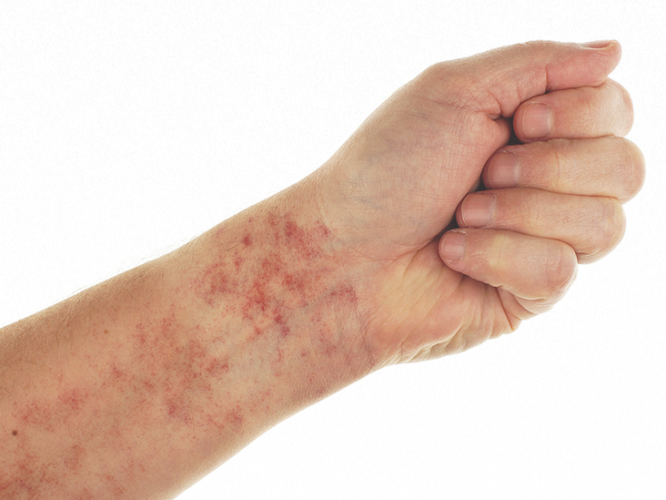 Petechiae, When to Worry: Causes, Symptoms, and More