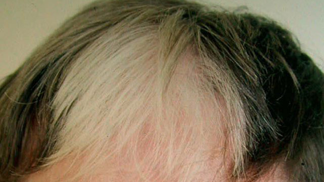 Poliosis Symptoms Causes And Treatments