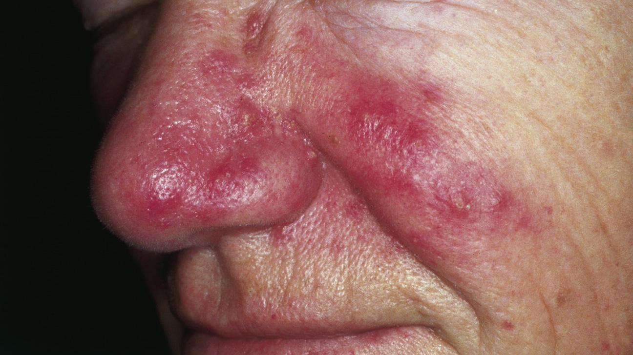Fotos de alergias en la piel por alimentos