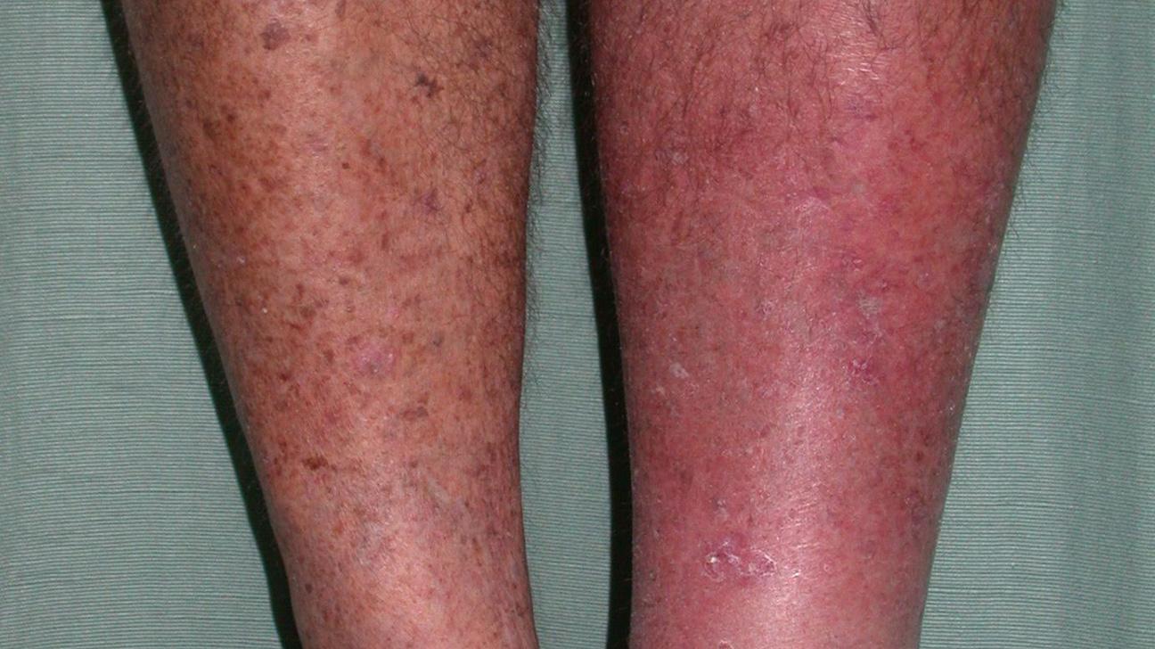 Manchas rojas en las piernas y picazon