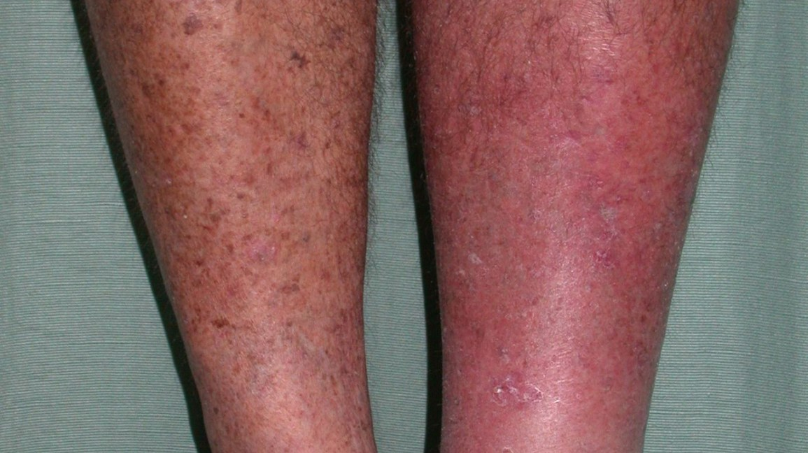 Rash and Skin That Feels Hot to the Touch: Causes and Photos
