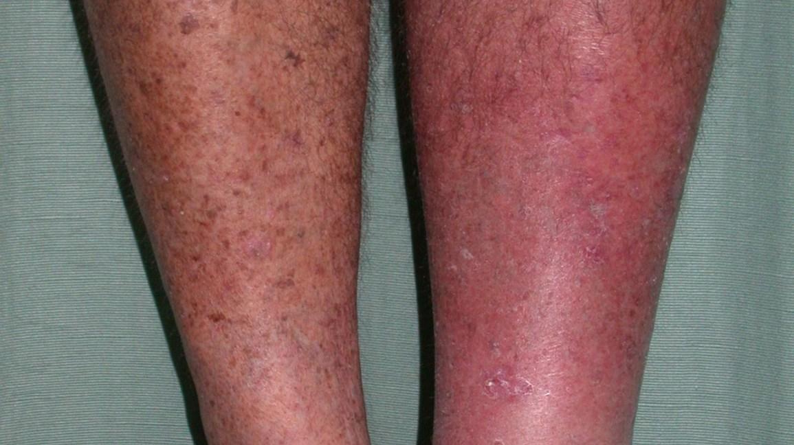 marcas en las piernas en forma de red