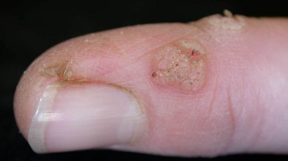 Skin Lesions Pictures Causes Types Risks Diagnosis And