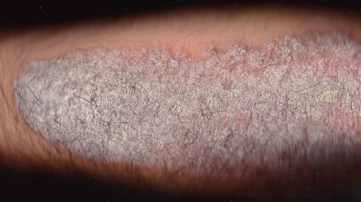 Scaling Skin Pictures Causes Diagnosis And Treatment