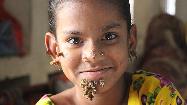 Sintomi hpv femminile. Papilloma virus femminile sintomi, Hpv bark skin