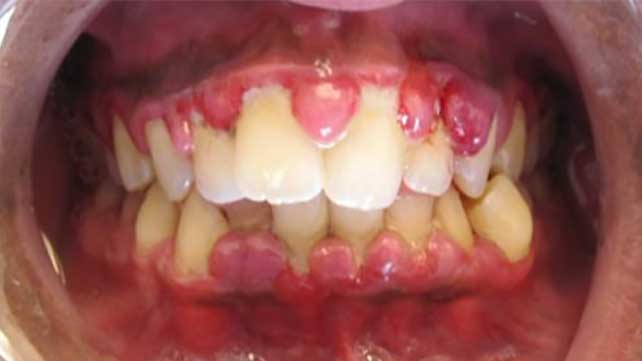 Gingival Hyperplasia: Causes, Symptoms, and Treatment