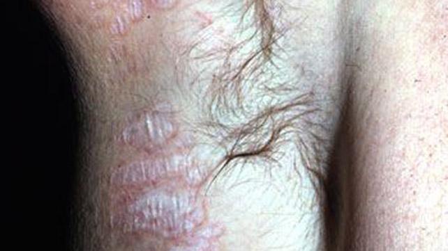 lichen simplex symtom