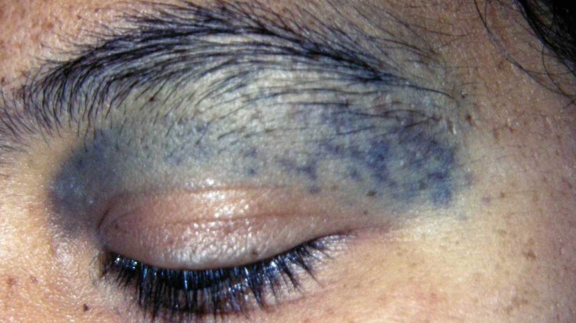 Nevus of Ota: Treatment, Eye, Removal, Glaucoma, and More
