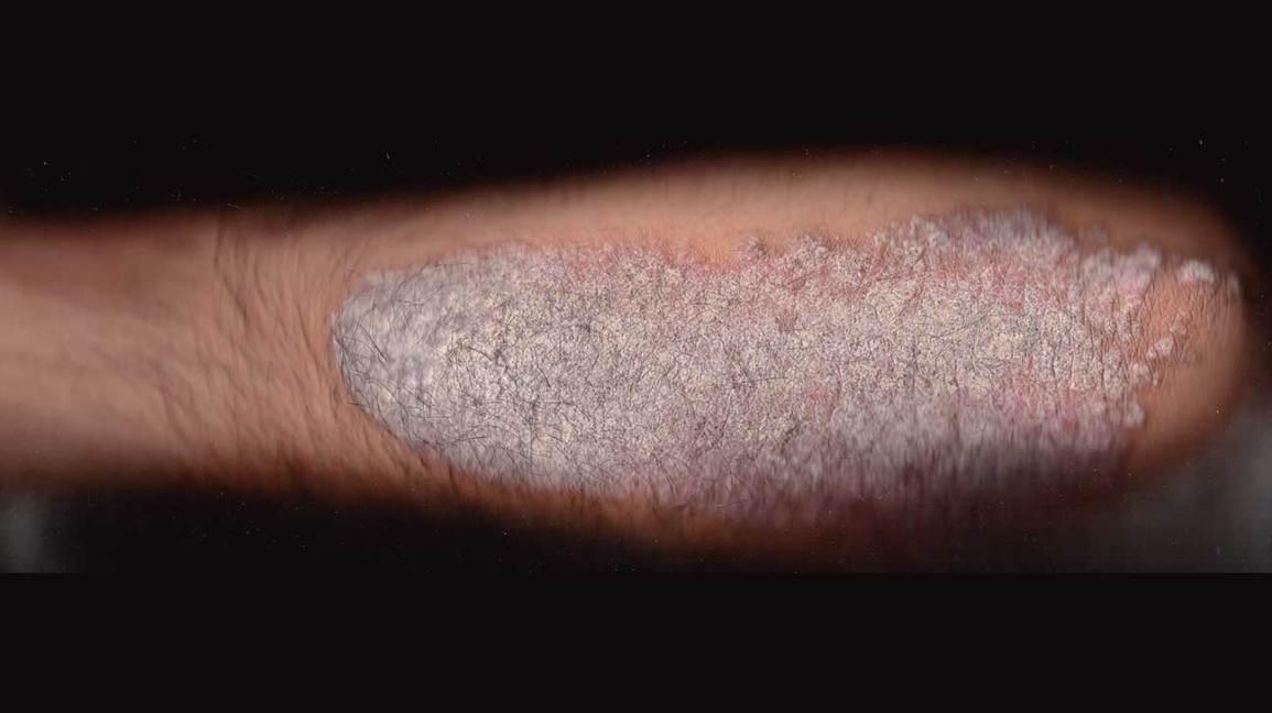 Psoríase vs. Dermatite seborréica