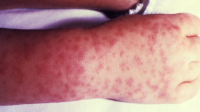 Pictures of symptoms of rocky mountain spotted fever
