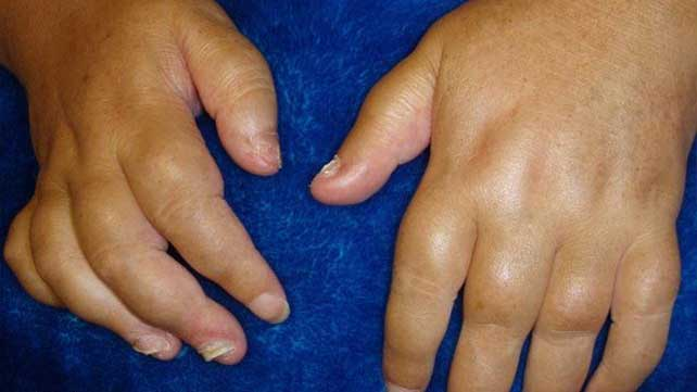 Swollen Hands: Exercise, Other Causes, and Treatment