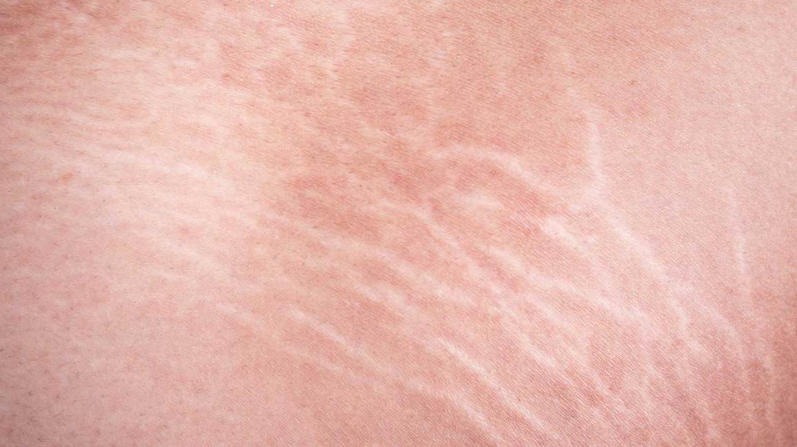 6 Ways To Get Rid Of White Stretch Marks