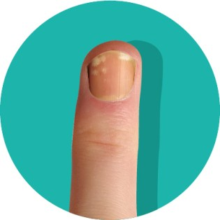 What These 8 Fingernail Textures and Colors Say About Your Health