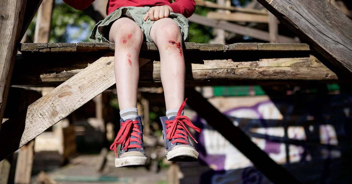 Scraped Knee: Treatment and Infection
