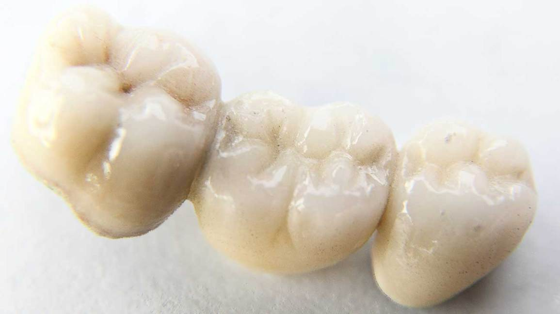 Dental Bridge 4 Types Benefits Use Case And Costs