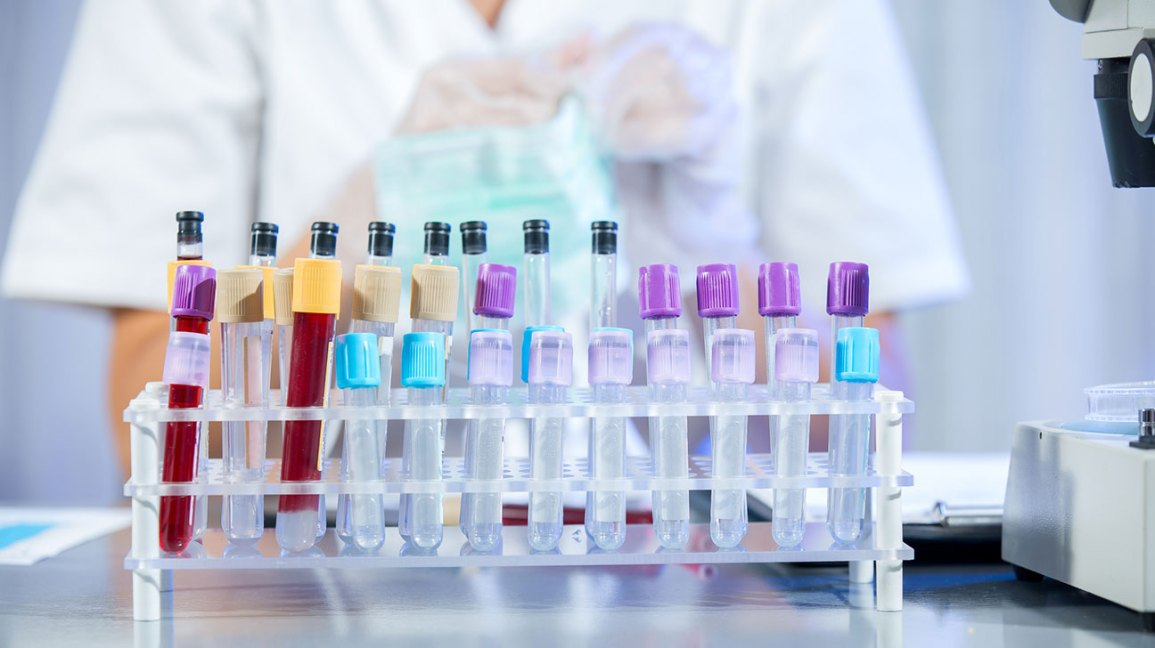 Autoimmune Diseases: How Mono Virus Can Raise Risk