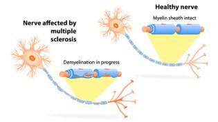 Antibody That Repairs Nerve Damage Improves Visual Symptoms