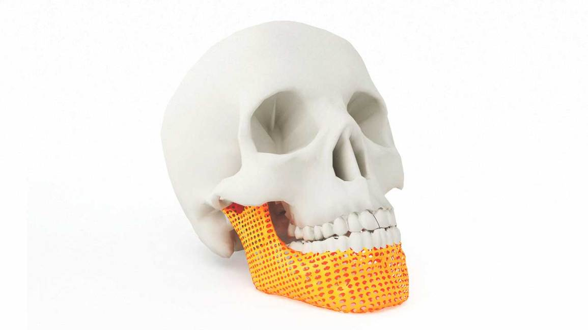 Artificial Bones: The Latest in 3-D Printing