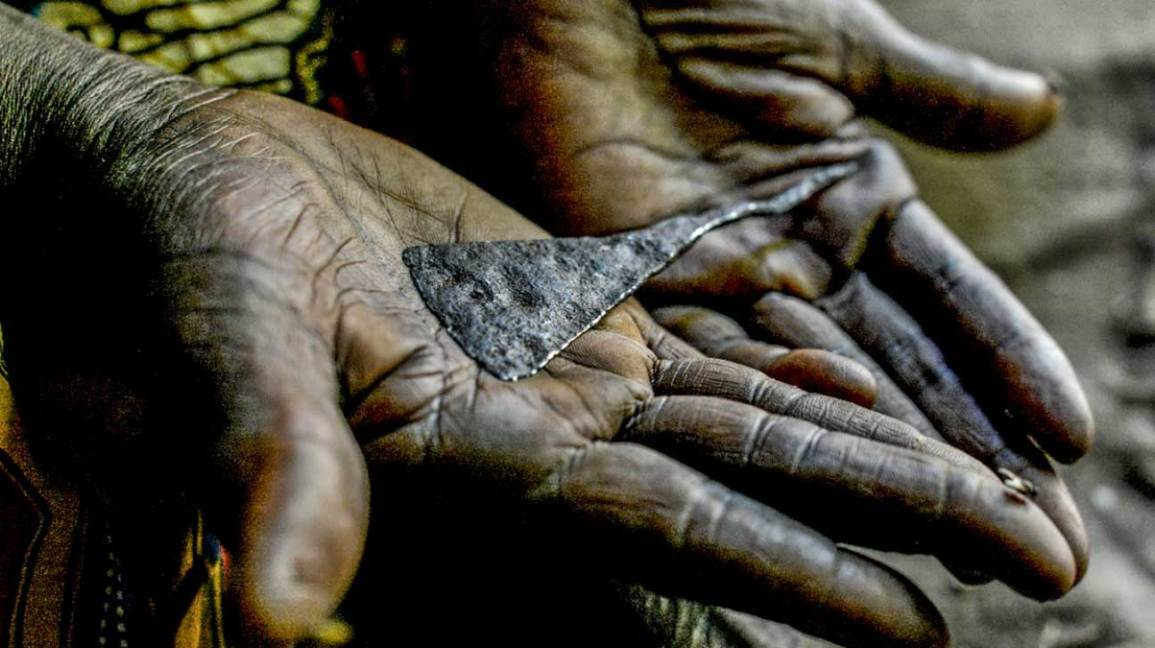 Surgery Offers Hope for Victims of Female Genital Mutilation