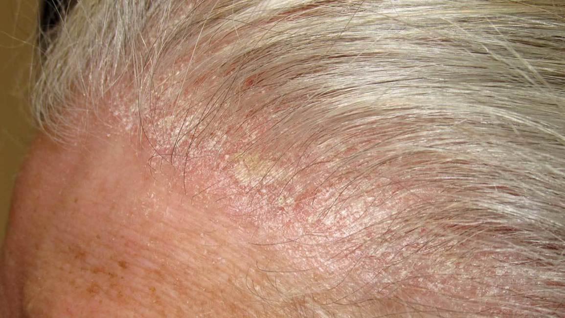 scalp psoriasis symptoms and causes)