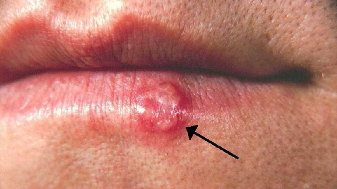 Skin Lesions: Pictures, Causes, Types, Risks, Diagnosis, and Treatments
