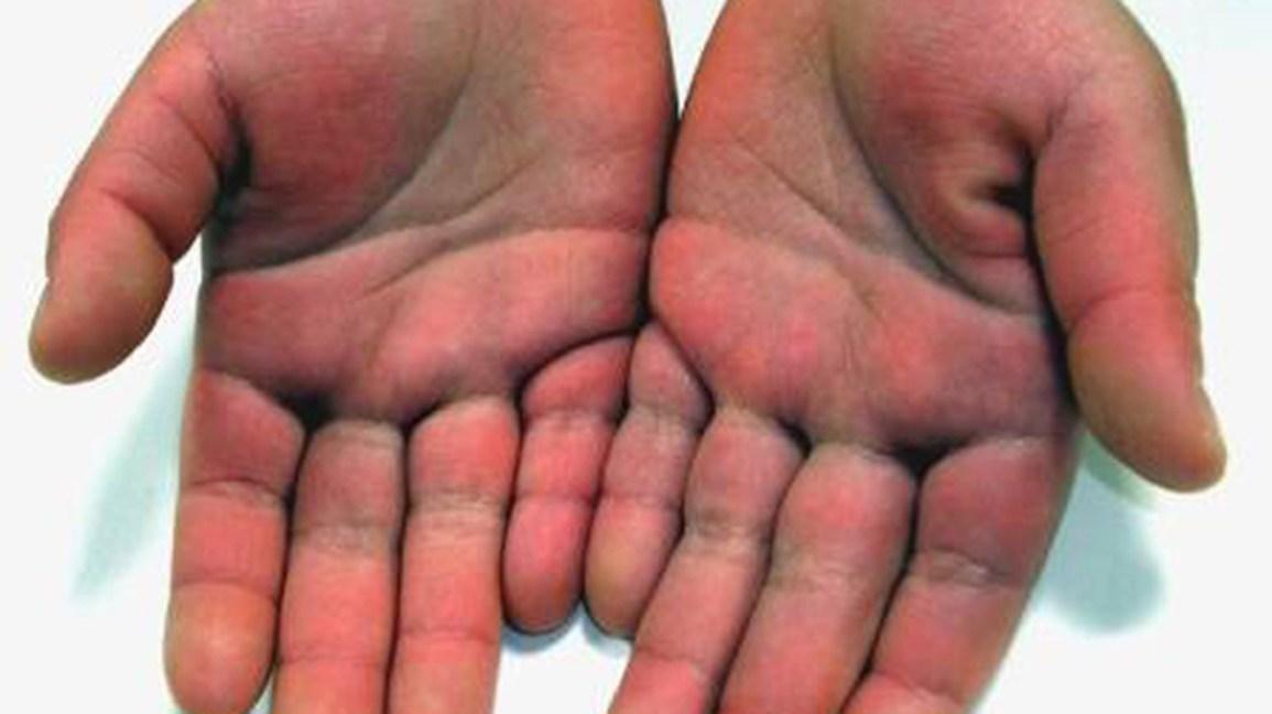piernas moradas y fiebre