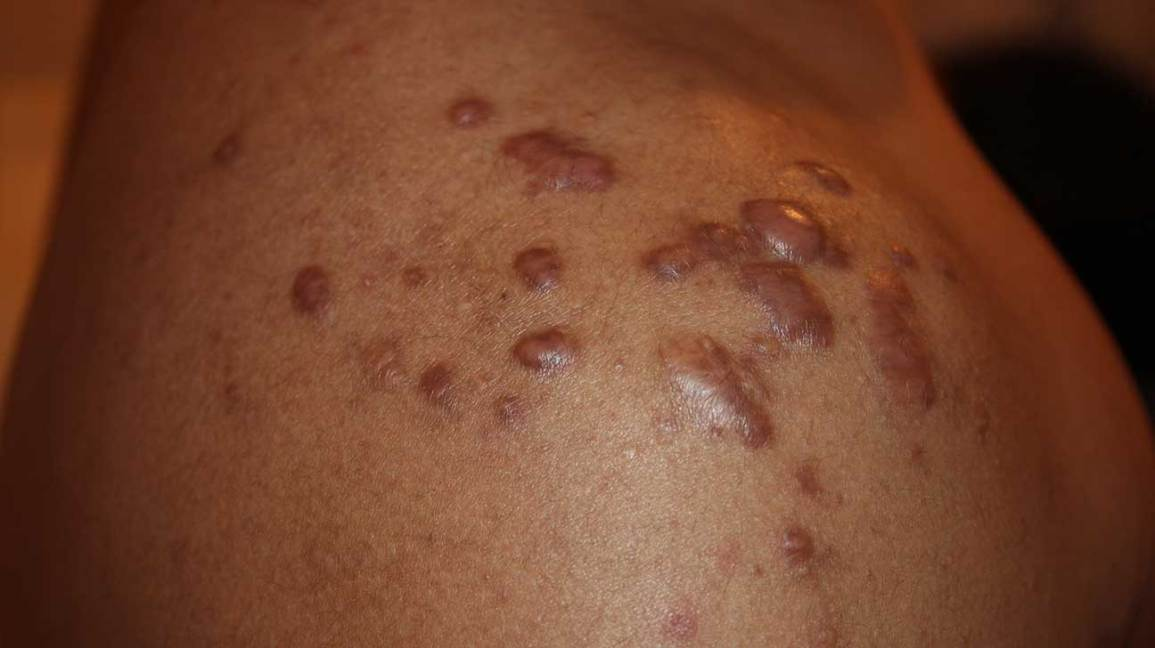 Six common types of bumps on your skin - and the ones that could ...
