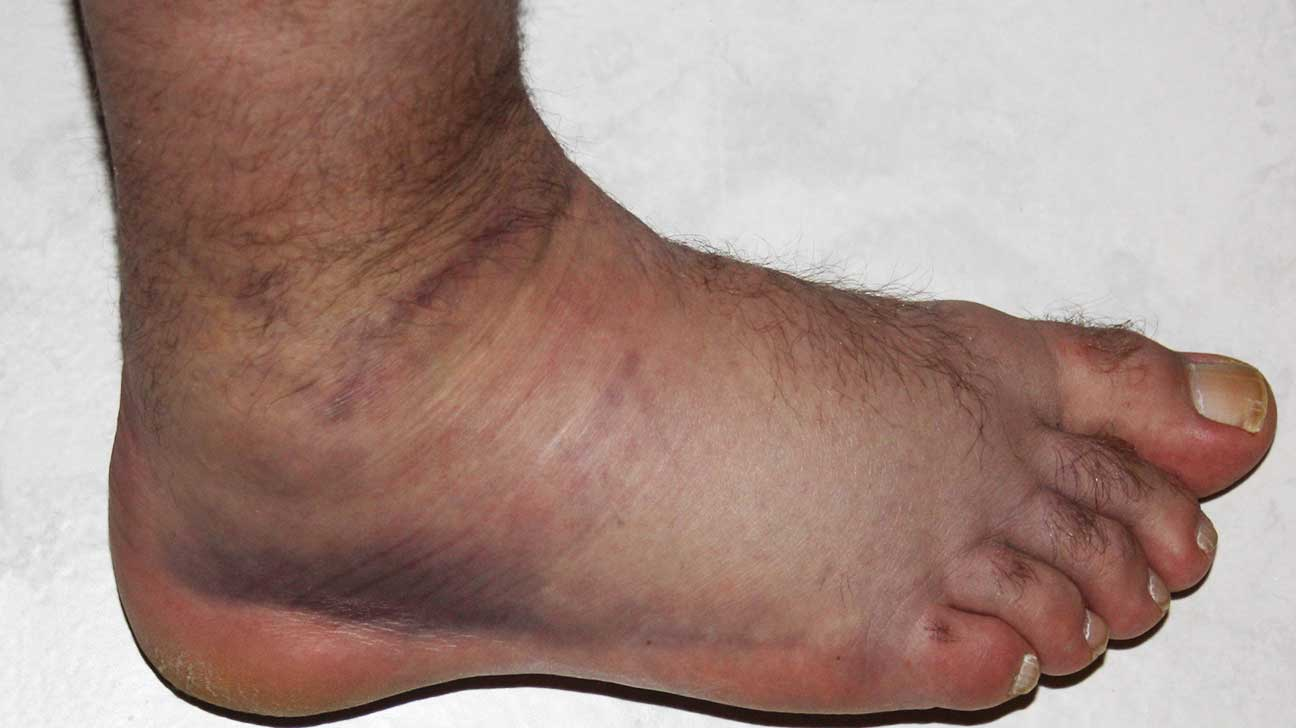 Bruise: Pictures, Types, Symptoms, and