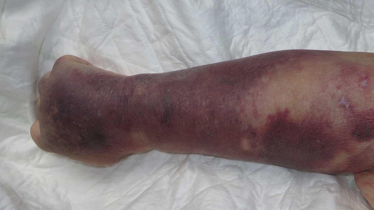 Burn Bruise