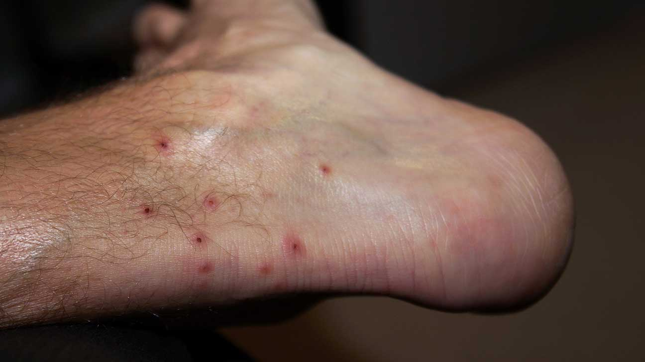 bites and stings pictures