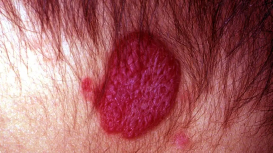 Strawberry nevus