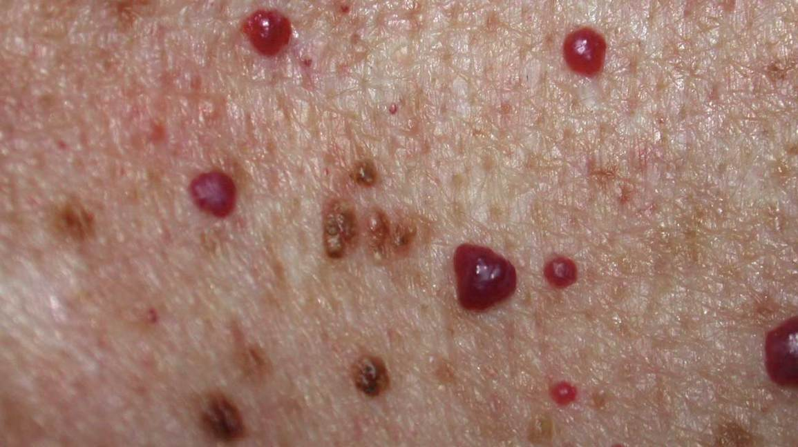 what is raised red spot on skin