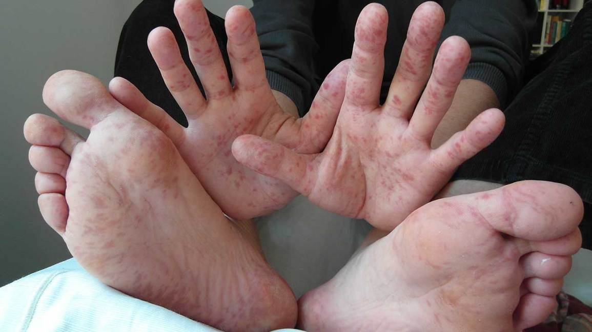 Hand, foot, and mouth disease