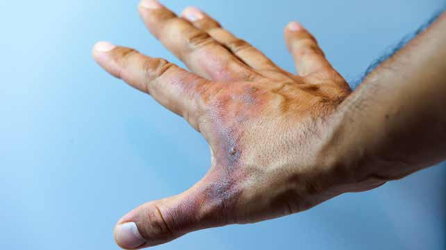 What is a Fair Compensation for Burn Injury?