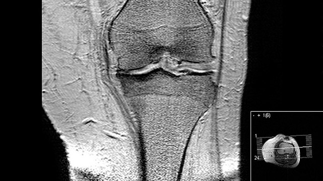 What Does Arthritis Look Like on an MRI?