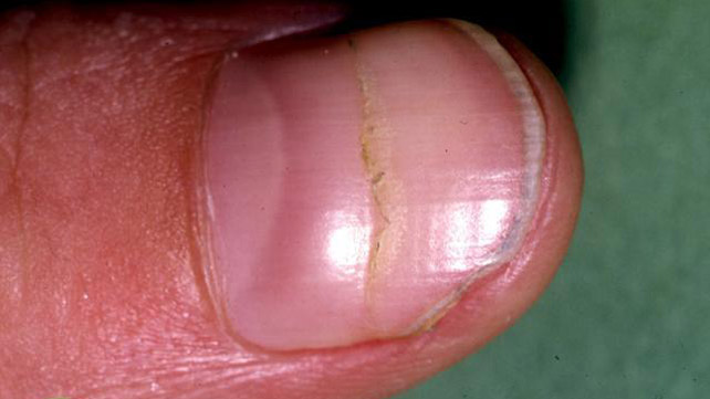 Black Line On The Nail Causes Treatments Pictures And More