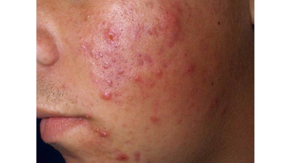 What Are Blemishes And How Can You Get Rid Of Them