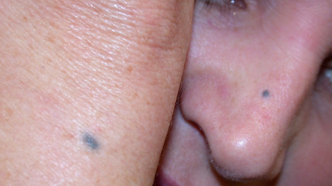 Blue Nevus: Identification, Removal, and More