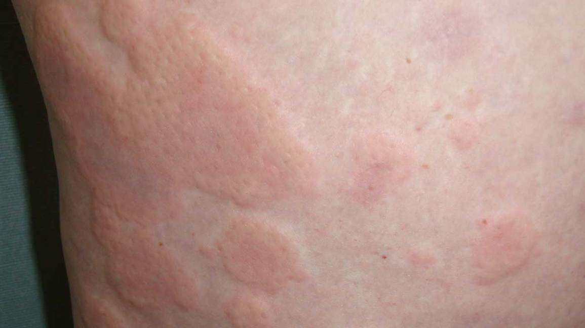 Chronic Idiopathic Urticaria: Pictures, Symptoms, and Treatment