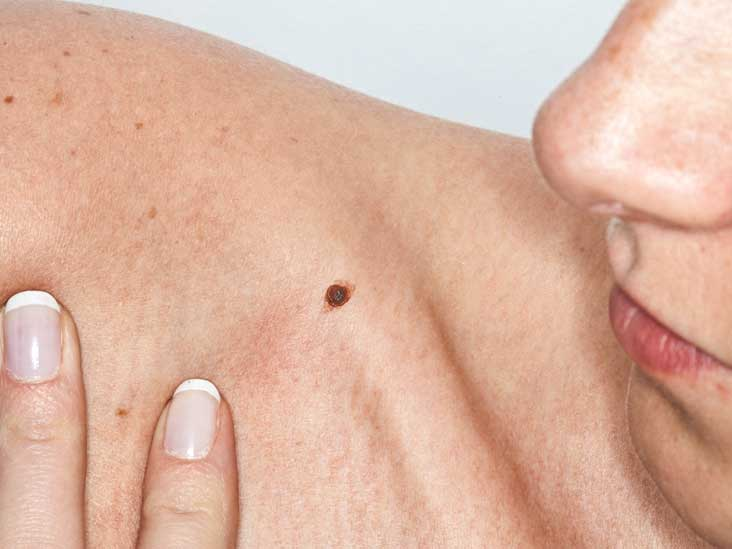 Lichenoid Keratosis: Treatment, Dermascopy, and Pictures
