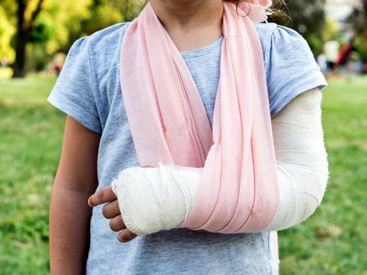 Image result for fracture repair