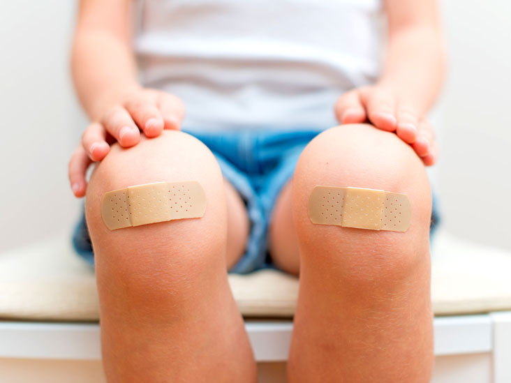 Abrasion: Home Treatment, Symptoms, Recovery, and More
