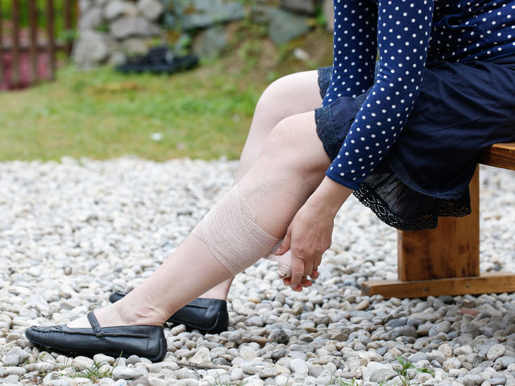 Leg ulcers: Causes, Symptoms and Diagnosis