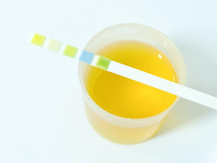 Urine Glucose Test: Purpose, Procedure, and Results