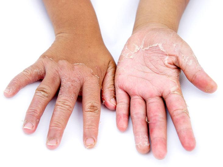 Newborn Skin Peeling: What Should Parents Do?