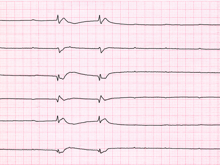 Sinus Tachycardia: Normal vs  Inappropriate, Causes, Treatment